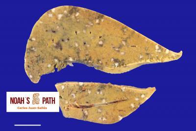 Hepatitis necrotizante debida a yersiniosis (pseudotuberculosis)