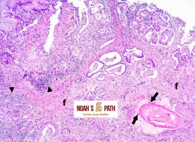 Proventriculitis proliferativa con nematodo espirúrido acuárido intralesional