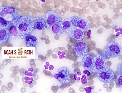Conjuntivitis piogranulomatosa por micobacteriosis