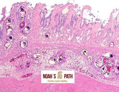 Gastritis por embolismo de huevos de tremátodos espirórquidos