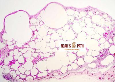 Ingluvitis enfisematosa