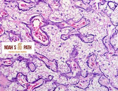 Mineralización sinusoidal hepática y lipidosis