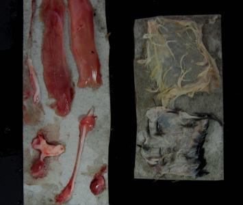 Fijación de nervios, piel, y músculo extendidos, y órganos pequeños adheridos a fragmentos de cajas de agujas/jeringas