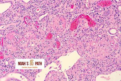 Nefroesclerosis arteriolar, degeneración fibrinoide arteriolar renal - hipertensión sistémica