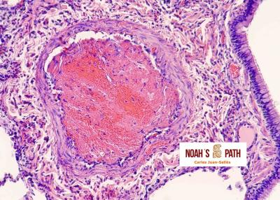 Trombosis arteria pulmonar