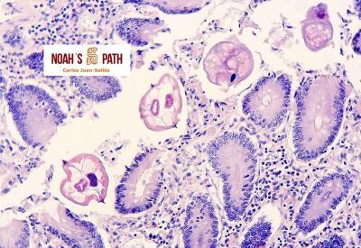 Enterobiasis, troglodytelliosis
