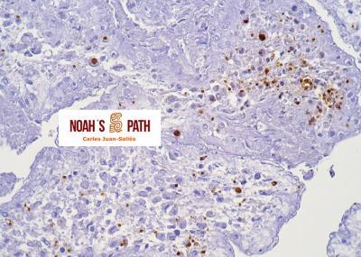 Placentitis, toxoplasmosis transplacentaria - Inmunohistoquímica Toxoplasma gondii