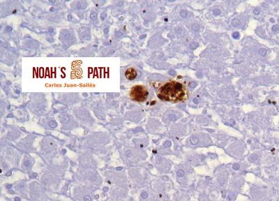 Toxoplasmosis transplacentaria, músculo esquelético - inmunohistoquímica