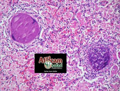 Neumonía intersticial, besnoitiasis