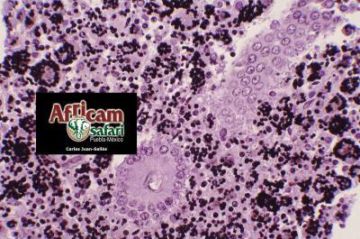 Enteritis granulomatosa, histoplasmosis - tinción GMS