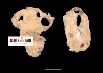 Mediastinitis (masa mediastínica) por Pseudomonas luteola