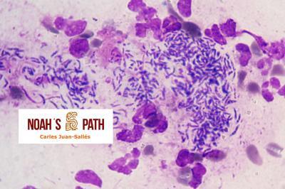 Piotórax (citología), Pseudomonas luteola