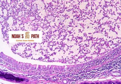 Bronquitis purulenta, Pseudomonas luteola