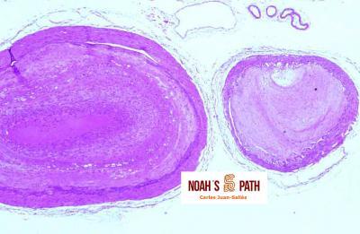 Ateromatosis en arterias basilar y vertebrales (base encéfalo)