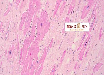Fibrosis miocárdica, hipertrofia nuclear de cardiomiocitos