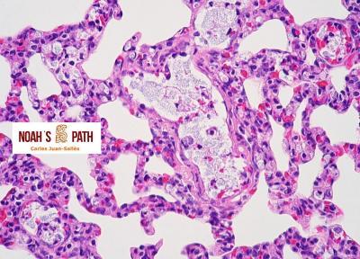 Klebsiellosis septicémica - control de infecciones en animales en cuarentena