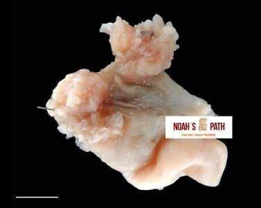 Pólipos adenomatosos proventriculares con nematodos espirúridos acuáridos en un lori