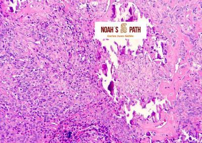 Imagen histológica de osteosarcoma en un conejo