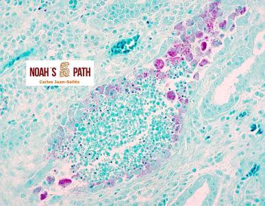 Nefritis túbulo-intersticial, clamidofilosis - tinción de Stamp