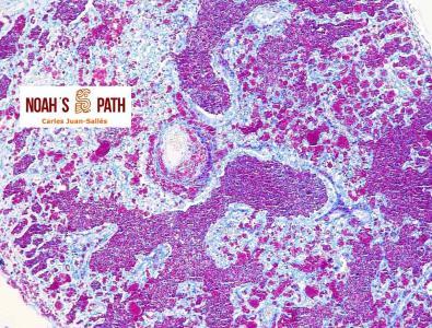 Neumonía por micobacteriosis diseminada - tinción Ziehl-Neelsen