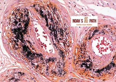 Mineralización arterial, ovario - tinción de von Kossa