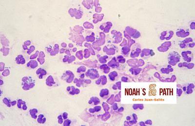 Neumonía purulenta, <i>Streptococcus pneumoniae</i>