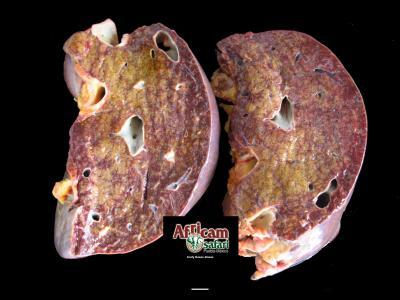 Congestión hepática pasiva crónica, insuficiencia cardiaca congestiva de lado derecho
