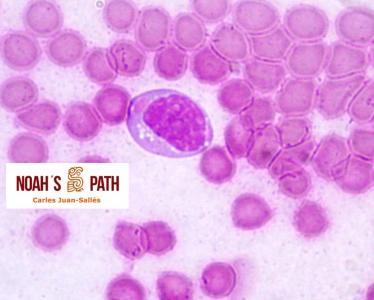 Cuerpo de inclusión intracitoplasmático de moquillo en precursor mieloide