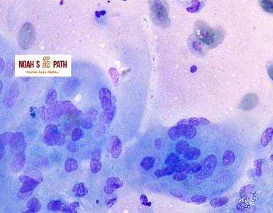 Dermatitis granulomatosa fúngica CANV-like