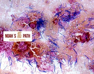 Macrorhabdiosis, tinción de Gram