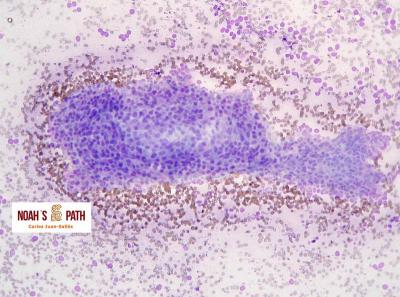 Tricoblastoma/Neoplasia de células basales