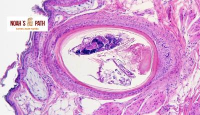 Acariasis folicular