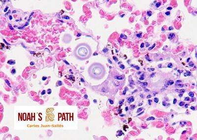 Embolismo de Cryptococcus en pulmón