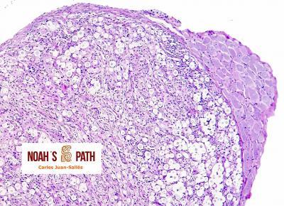 Radiculoneuritis por criptococosis
