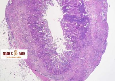 Enteritis piogranulomatosa por coronavirus sistémico