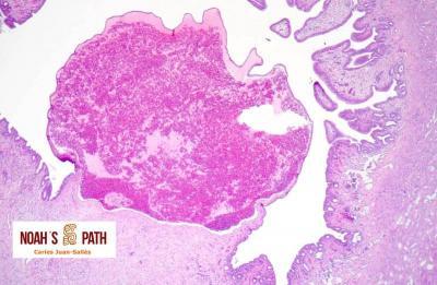 Aneurisma venoso endometrial