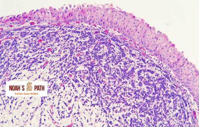 Carcinoma epitelio transición - vegija orina