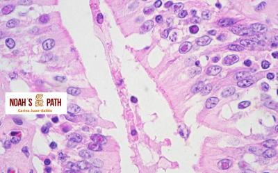 Coccidiosis intranuclear - intestino