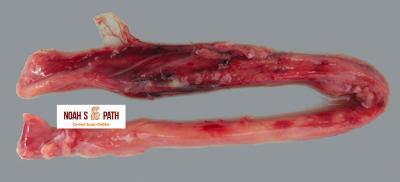 Esofagitis supurativa con hemorragia - Miofascitis del hurón