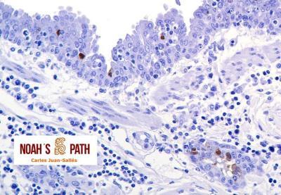 Marcaje antígeno influenza en neumonía bronquiolointersticial - Inmunohistoquímica virus de influenza A