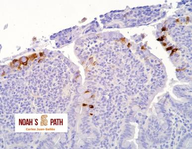 Marcaje de antígeno de coronavirus entérico en enteritis - Inmunohistoquímica de coronavirus
