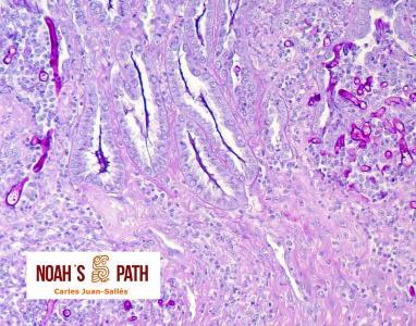 Ventriculitis por zygomicosis invasiva - tinción de PAS