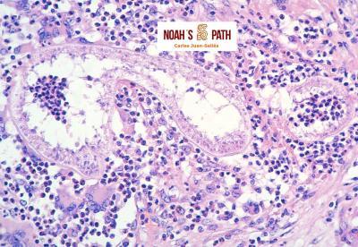 Colangiohepatitis hidatidosis alveolar