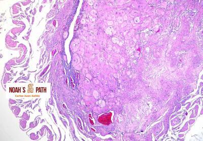 Coriocarcinoma uterino no gestacional