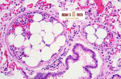 Embolismo de médula ósea en pulmón
