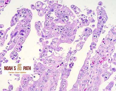Enteritis proliferativa coccidiosis intranuclear