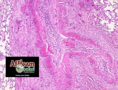Degeneración fibrinoide y arteriosclerosis (fibrosis transmural y periarterial) pulmonar, hipoxia de la altitud