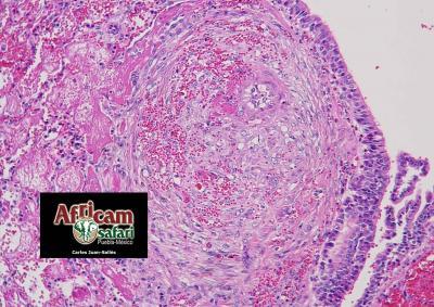 Degeneración fibrinoide, hemorragia e hiperplasia/hipertrofia mediales arteriales pulmonares, hipoxia de la altitud