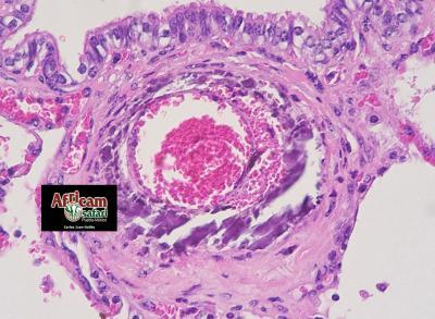 Mineralización y hemorragia mediales arteriales pulmonares, hipoxia de la altitud