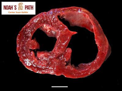 Cardiomiopatía dilatada biventricular